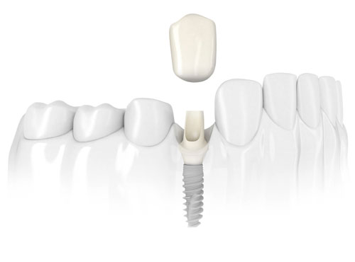 implanteblancopeque